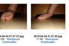 voet- en loopproblemen bij Pitt Hopkins Syndroom
